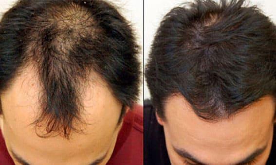 زراعة الشعر جدة