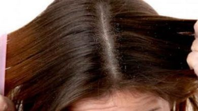علاج حكة فروة الراس وتساقط الشعر