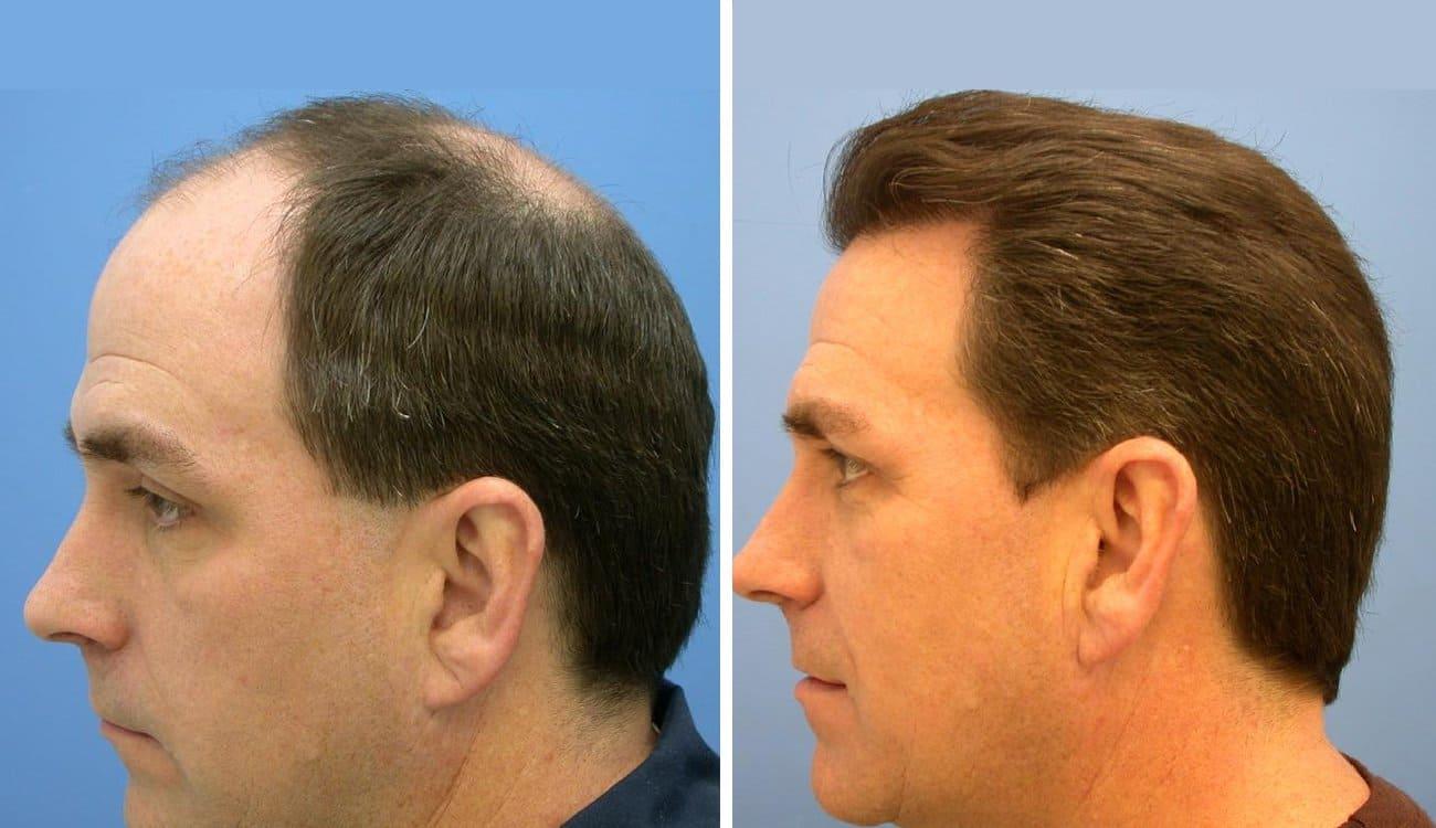 زراعة الشعر بالرياض