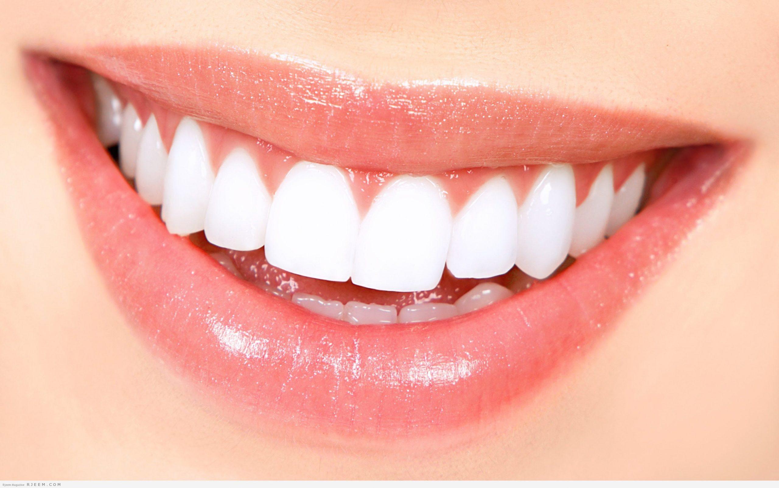تجارب لصقات كرست لتبييض الاسنان