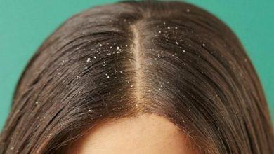 طرق علاج قشرة الشعر