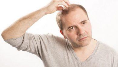 علاج تساقط الشعر للرجال