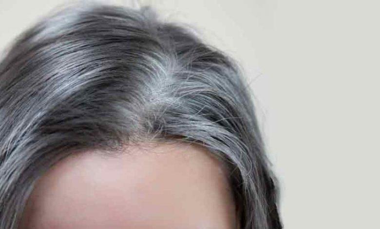 علاج الشعر الابيض